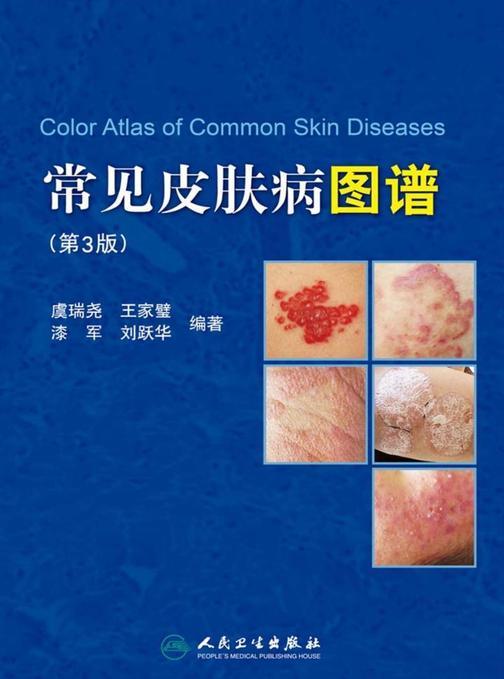 常见皮肤病图谱(第3版)