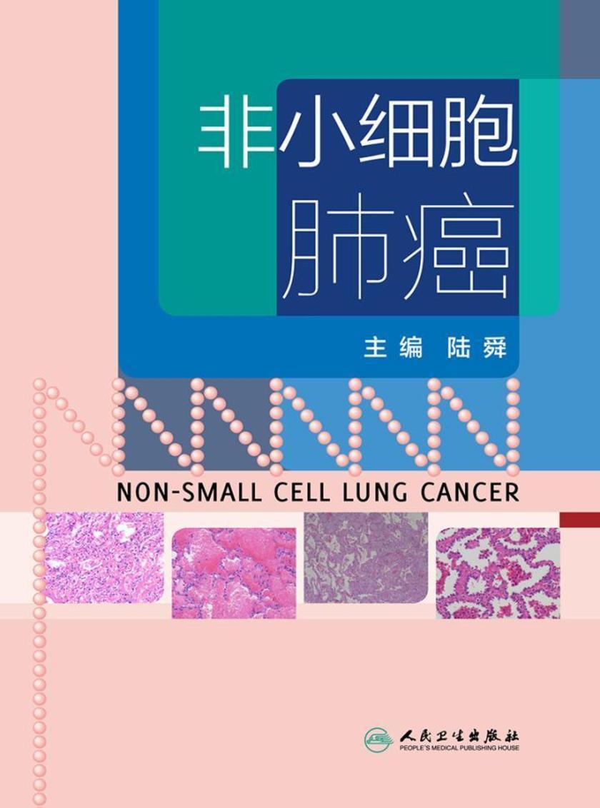 非小细胞肺癌