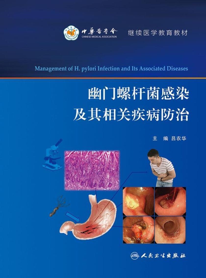 幽门螺杆菌感染及其相关疾病防治