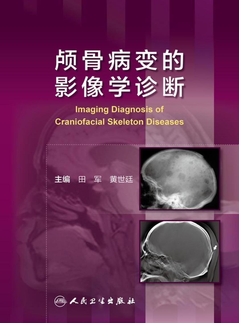颅骨病变的影像学诊断