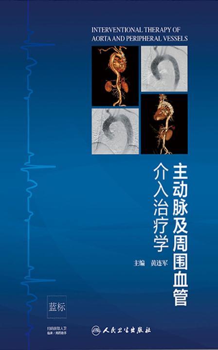 主动脉及周围血管介入治疗学