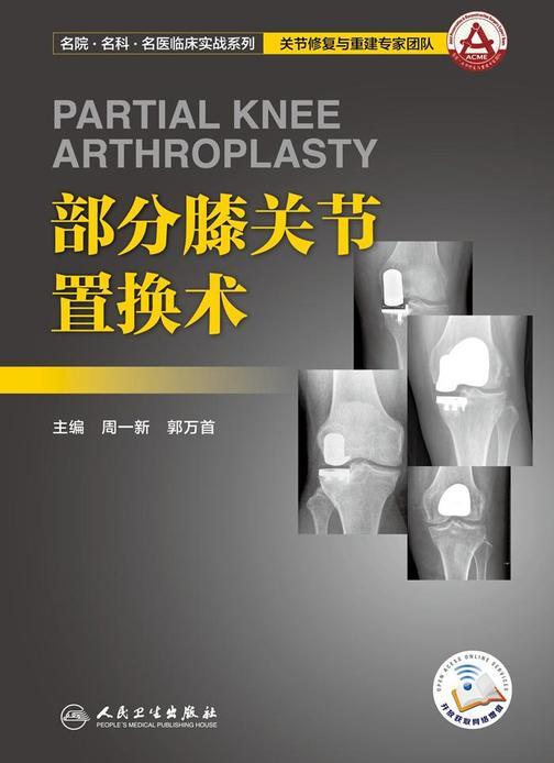 部分膝关节置换术