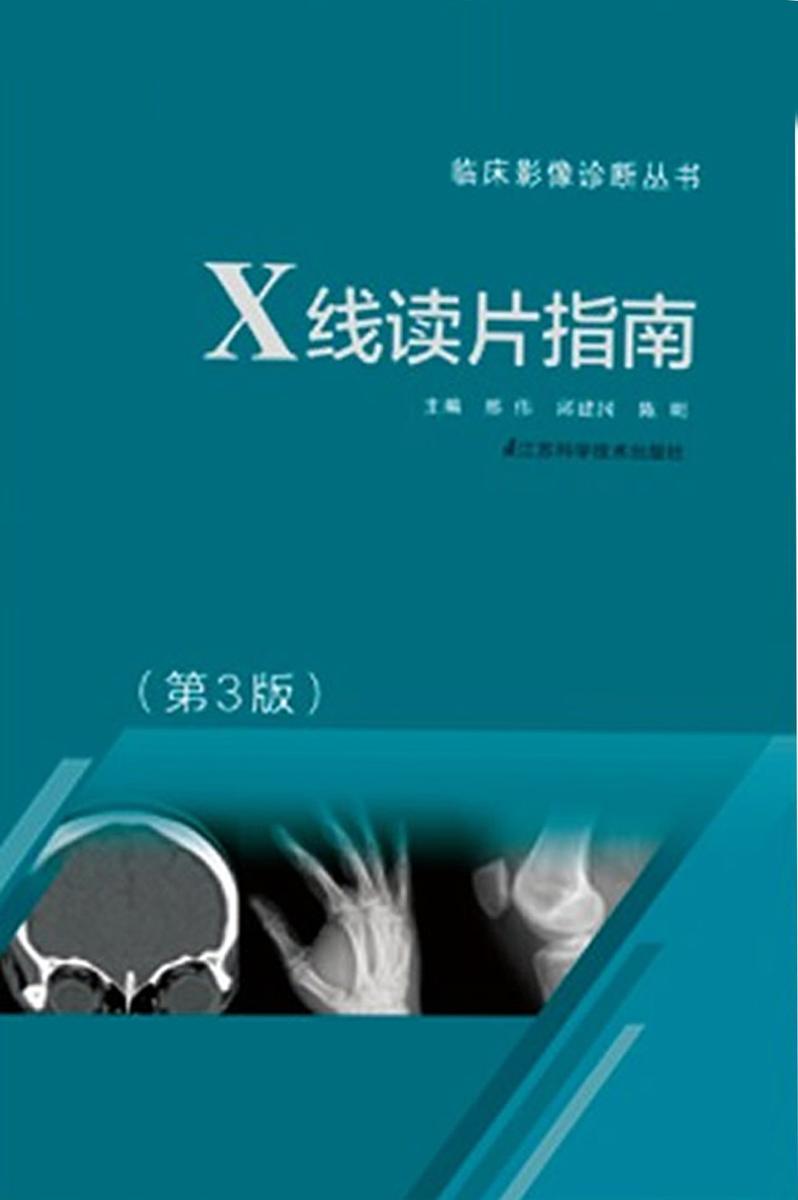 X线读片指南