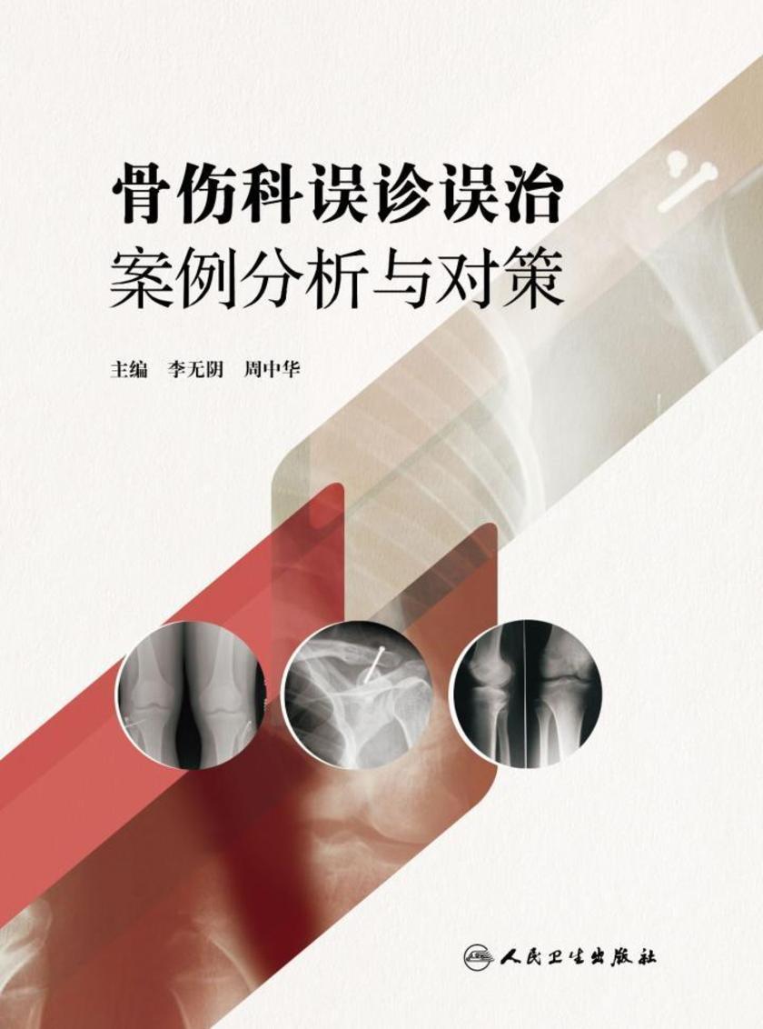 骨伤科误诊误治案例分析与对策