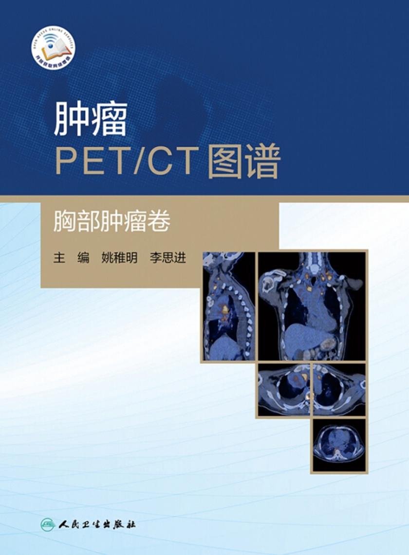 肿瘤PET/CT图谱——胸部肿瘤卷