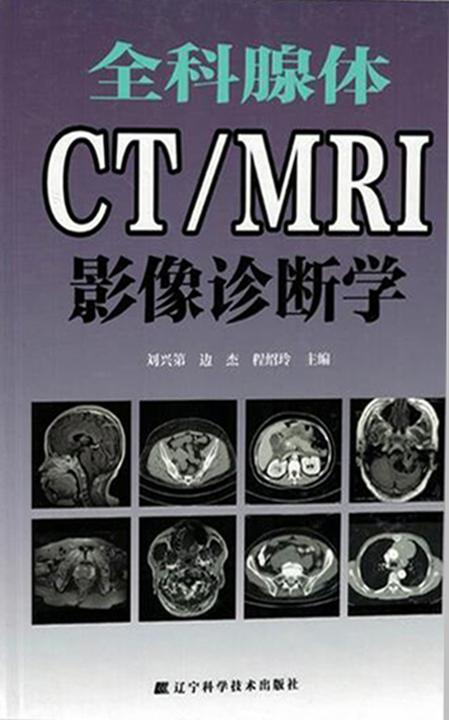 全科腺体CT/MRI影像诊断学
