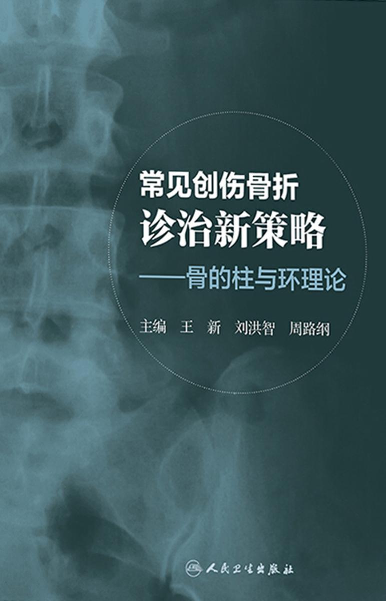 常见创伤骨折诊治新策略:骨的柱与环理论
