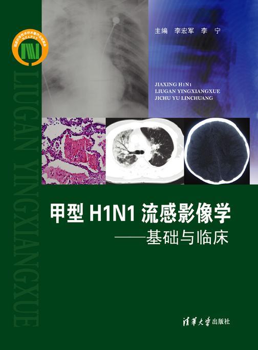 甲型H1N1流感影像学:基础与临床(仅适用PC阅读)