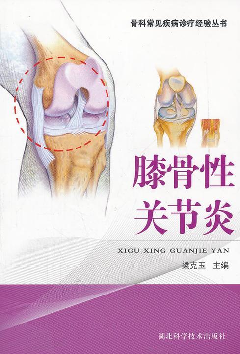 膝骨性关节炎