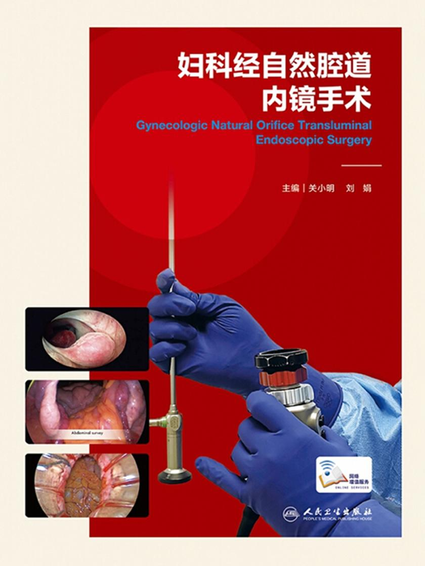 妇科经自然腔道内镜手术