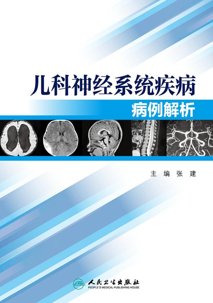 儿科神经系统疾病病例解析