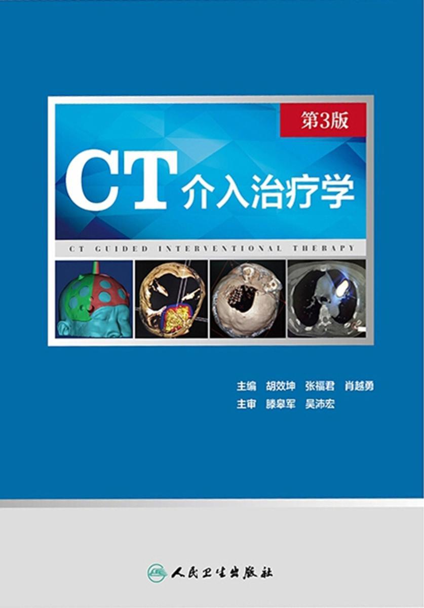 CT介入治疗学(第3版)